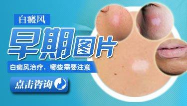 武汉白癜风早期治愈率高吗