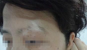 武汉脸部白癜风的治疗有哪些