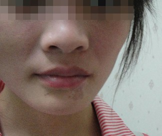 武汉白癜风初期治疗的注意有哪些呢