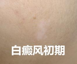 武汉市白斑病医院地址?白癜风的主要症状有哪些?