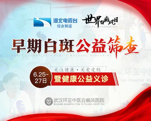 武汉白癜风医院哪家效果好?控制白癜风只能是吃药控制吗